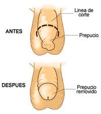 circuncision