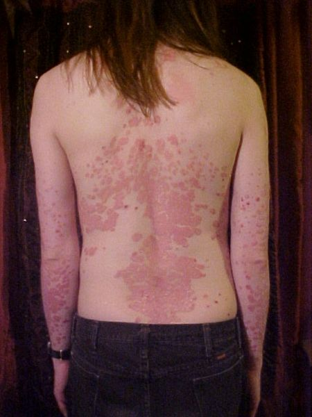 Como curar la psoriasis