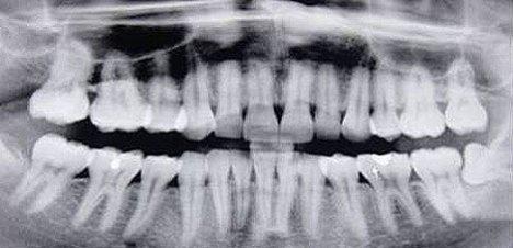 ortopantomografia2