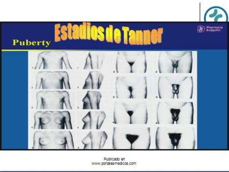 pubertad_estadios_tanner